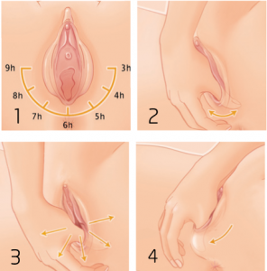 masaje perineal