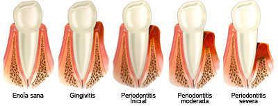 fases_de_la_periodontitis