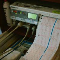 ¿Para qué sirve el electromiograma? 2