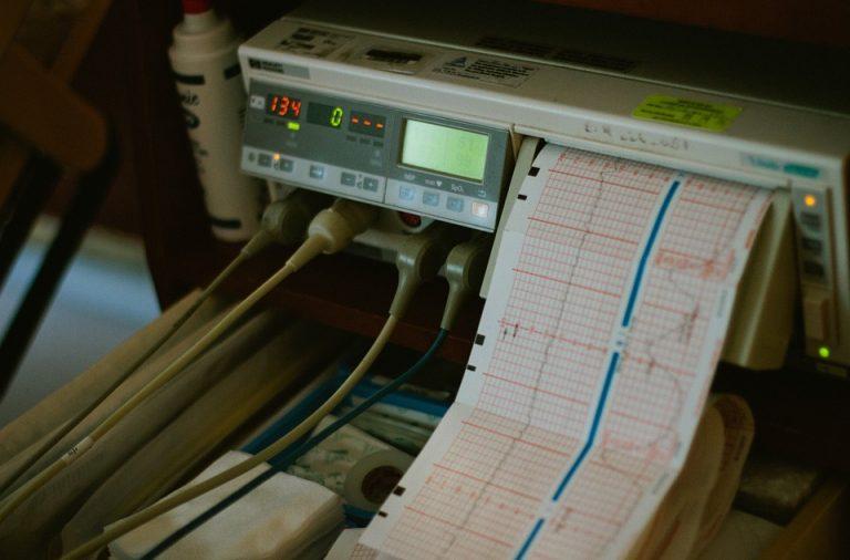 ¿Para qué sirve el electromiograma? 4