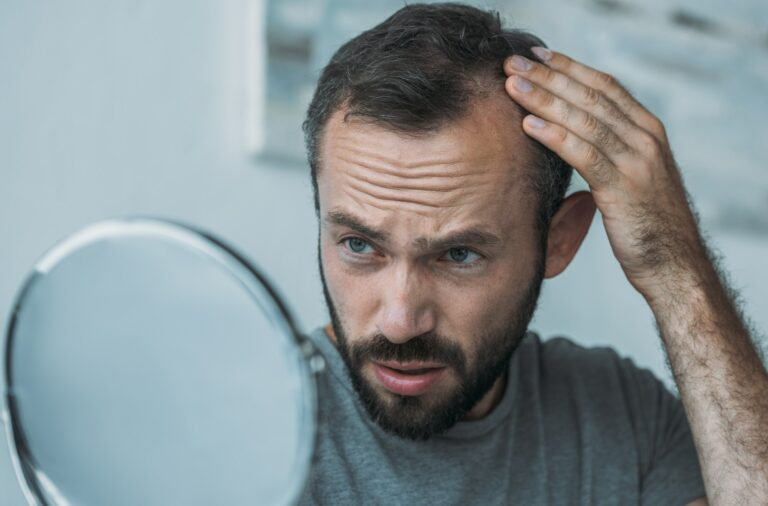 upset middle aged man with alopecia looking at mirror, hair loss concept